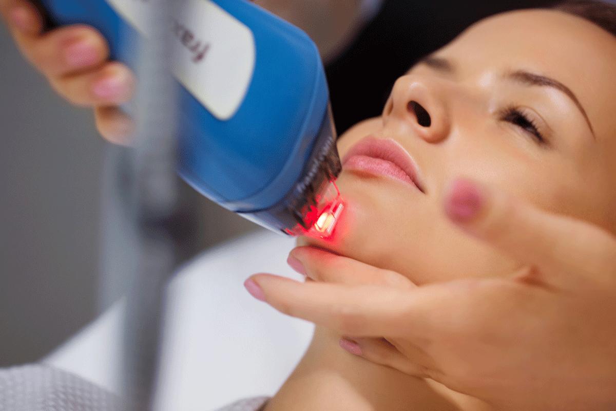 Клиники лечение акне УЛазерная косметология Студенческий переулок Чебоксары