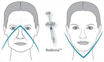 Устранение признаков старения препаратом Радиес